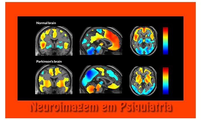 13º Módulo - Neuroimagem em Psiquiatria